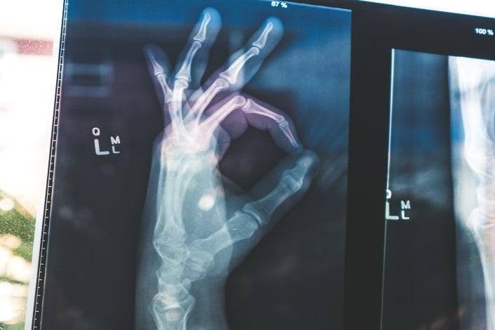 Radiografía de un dedo